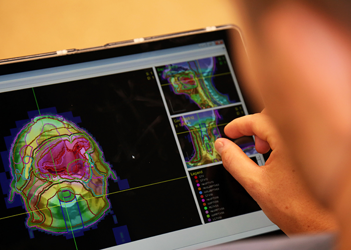 Aaron Babier (MIE PhD candidate) is using AI technology to automate radiation therapy planning. (Credit: Brian Tran)